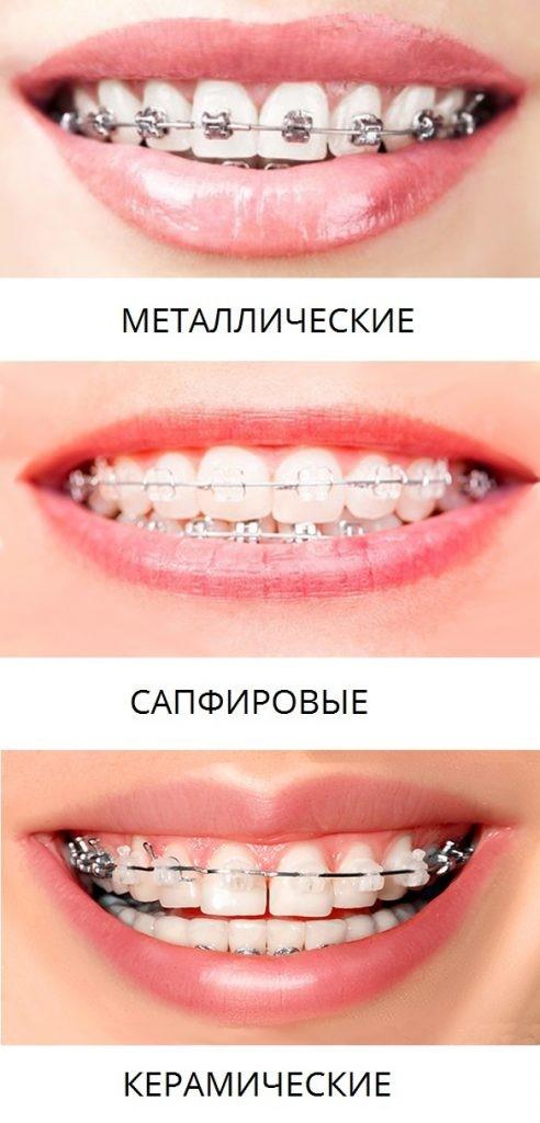Металлические, сапфировые, керамические брекеты